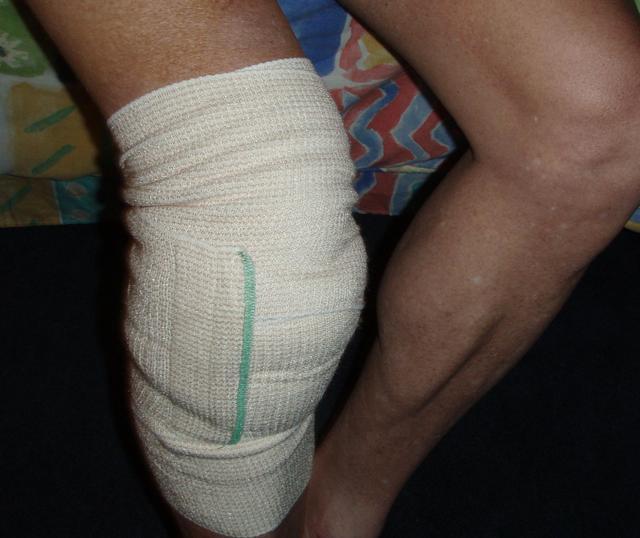 knee repair