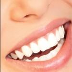teeth-whitening-smile